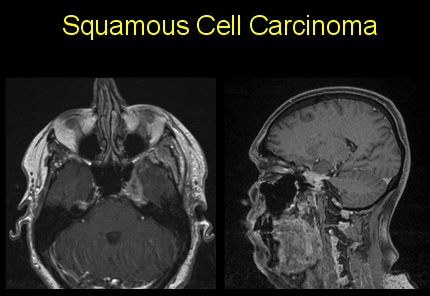 Carcinoma 2