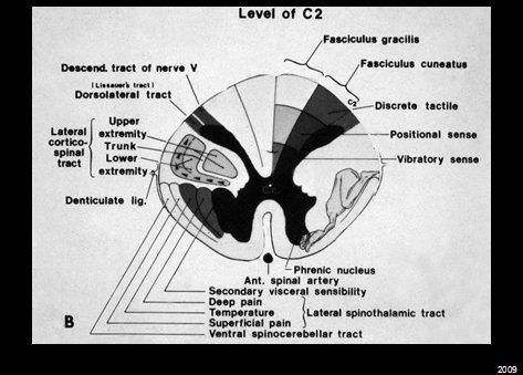 Level of C2